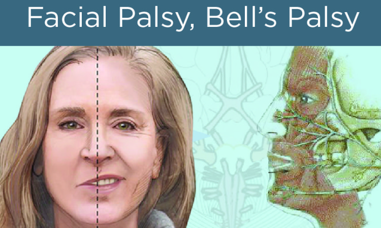 BellsPalsy-02