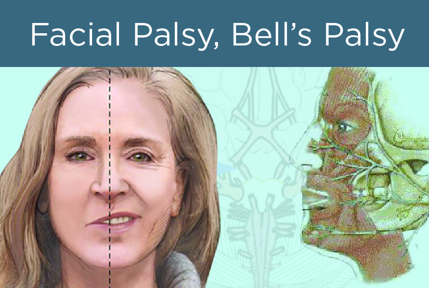 merit + point – the bell's palsy condition, Cephalic vein